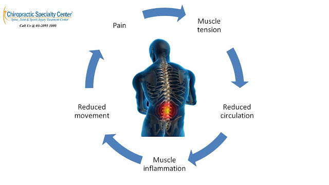 ice therapy and cycle of pain