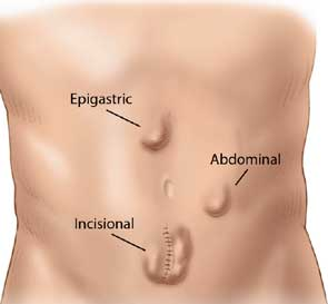 http://laparoscopicsolutions.in/laparoscopic-hernia-surgery-mumbai.html