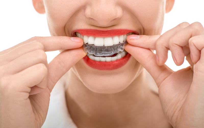Bruxismo y apretamiento dental Zaragoza