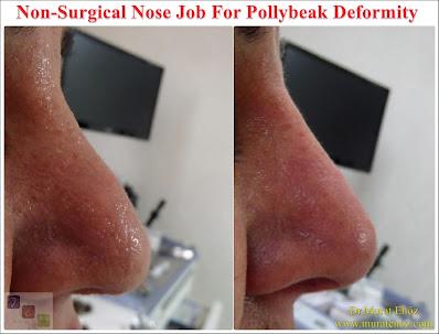 Pollybeak Deformity - Treatment of Pollybeak Deformity with nose filler - Non-surgical nose job for Pollybeak Deformity - Non-surgical nose job - Non surgical nose job with filler in İstanbul - Non-surgical rhinoplasty in İstanbul - Nose tip filler augmentation in İstanbul - Non-surgical rhinoplasty in İstanbul - Nose filler injection in Turkey - The 5 Minute Nose Job in İstanbul, Turkey - Non-surgical nose job in Istanbul - Non-surgical nose job istanbul - Nose filler injection Turkey - Injectable nose job - Liquid rhinoplasty
