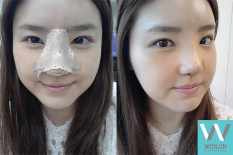 짱이뻐! - Korean Celebrities Rhinoplasty, Helped Me Get Rid of My Pig Nose