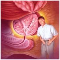 estreñimiento de prostatitis crónica