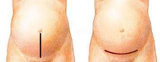 perawatan-luka-operasi-caesar