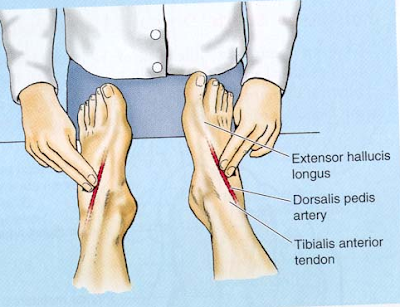 tratați denivelările pe articulația degetelor)