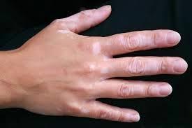 Obat Alami Vitiligo