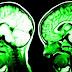 7 Hal Yang Dapat Mempengaruhi Kinerja Otak Terhadap Fisik Kita