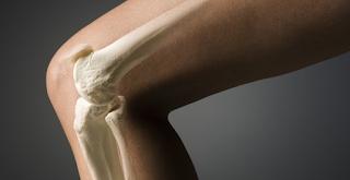 Οστεοπόρωση: 7 θαυματουργές Τροφές που θα Δυναμώσουν τα Οστά σας
