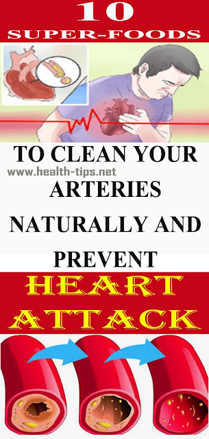 20 Foods That Can Help Unclog Your Arteries And Fight Bad Cholesterol#NATURALREMEDIES
