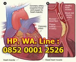 Cara Mengatasi Bahaya Penyempitan Pembuluh Darah di Jantung