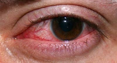 Mengatasi Sakit Mata Merah (Konjungtivitis)