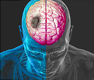 Best treatment for stroke recovery