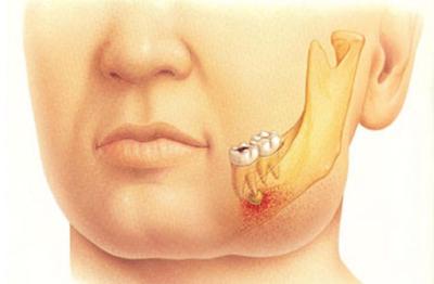 Bagi Kamu Yang Sering Kena Masalah Sakit Gigi, Coba Bacakan Ayat Ini, Insya Allah Sakitnya Cepat Hilang!!