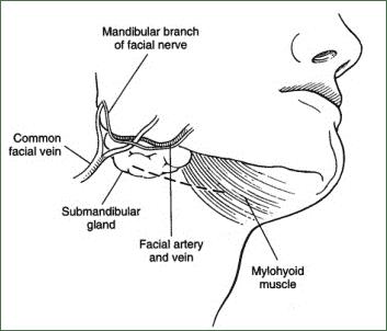 Dental Care: Submandibular Gland Resection