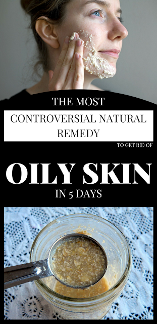 How to Get Rid of Oily Skin Naturally ?