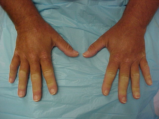 scleroderma (crest syndrome) - step2/3 rheumatology - step 2 & 3, Cephalic Vein