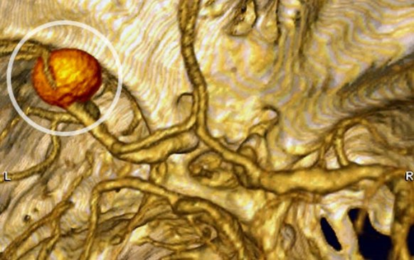 What Is A Brain Aneurysm: An aneurysm is a weak spot in one of your brain's arteries