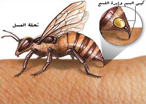 العلاج بقرص النحل