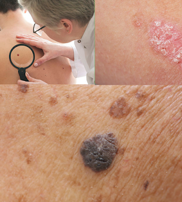 Skin Cancer Symptoms  - Skin Cancer Prevention