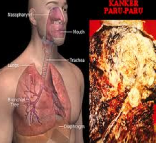 Mohon diperhatikan penyebab kanker paru-paru - Zakapedia