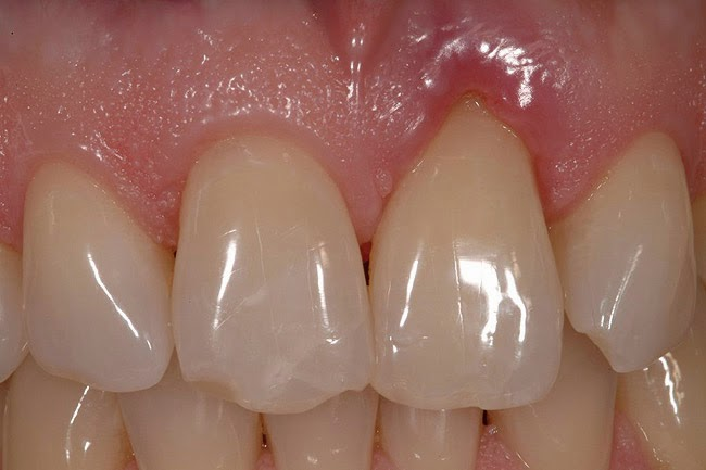 Résorption dentaire