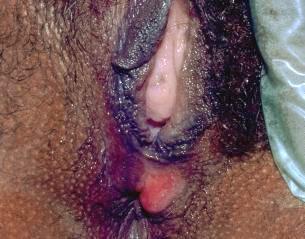 penyakit kelamin