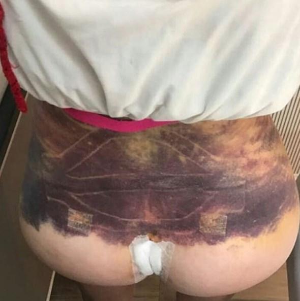 PRÓTESES NO BUMBUM - Youtuber Uckers está andando de cadeira de rodas e vai processar médico