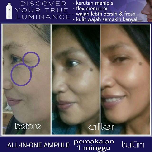 Bebas Bopeng Bekas Jerawat, Flek Hitam Tanpa Harus Laser Atau Ke Tempat Skin Care Di Barito Selatan Kalimantan Tengah