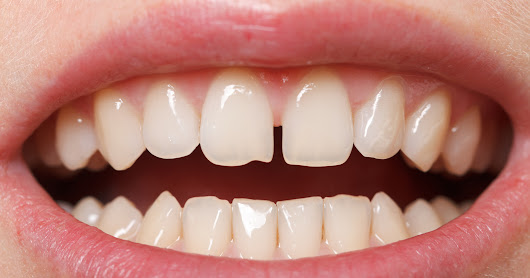 Diastema (Teeth Gaps) - which is the best treatment option