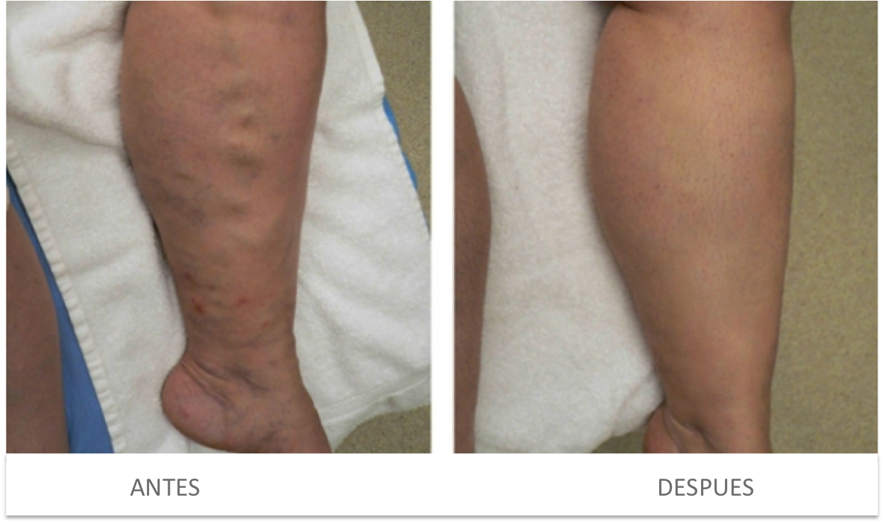 Salutaris Medical Center Tratamiento De Varices Con Laser