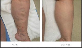 Foto antes y despues de cirugia para varices con laser