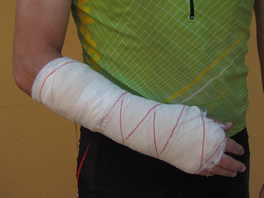 Los tipos de fracturas, salud y deporte