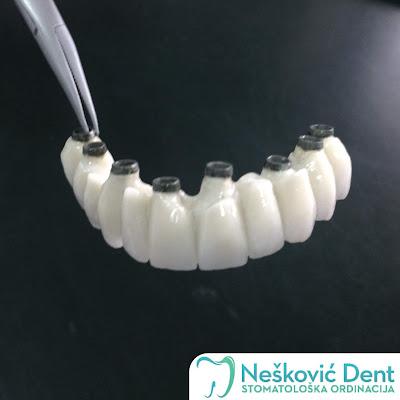 Zubni mostovi sa ugrađenim implantatima, zubarska ordinacija Nešković dent