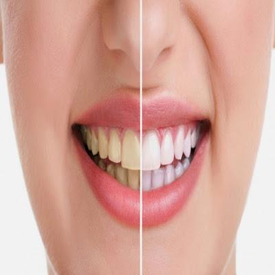 تبييض الاسنان بشكل سليم .. اتبع تلك النصائح لابتسامة رائعة