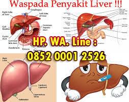 Obat Liver Paling Ampuh Aman dan Tanpa Efeksamping