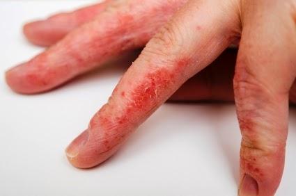 candidiase sintomas