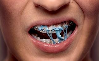 3 Resiko Utama Saat Menggunakan Kawat Gigi Bagi Kesehatan Mulut