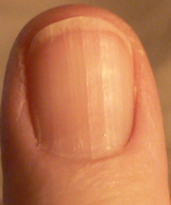 What Do Ridges In Fingernails Mean