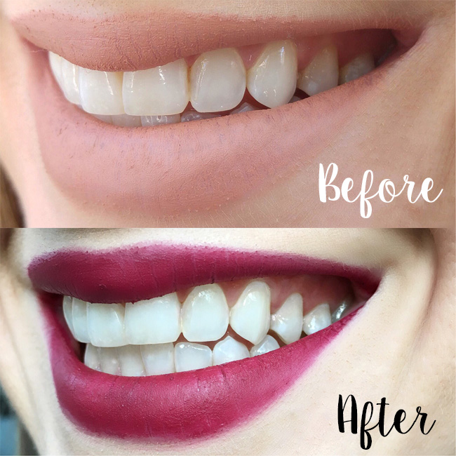 Whitening for Sensitive Teeth