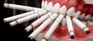 tabac et santé dentaire