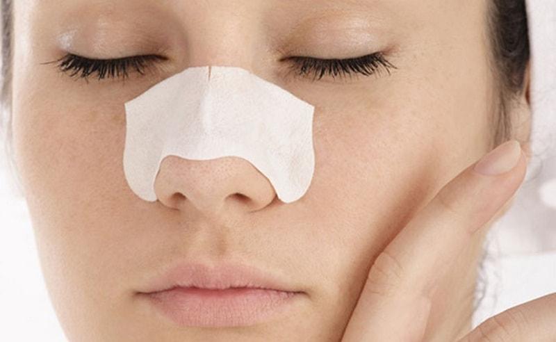 Cara membersihkan wajah dari komedo