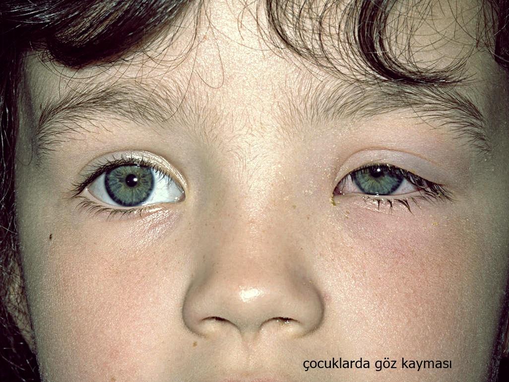 Çocuklarda Göz Kayması