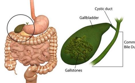 Obat Penghancur Batu Empedu Di Apotik Herbal