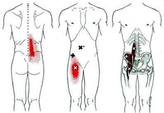 DOR NO QUADRIL Dor lombar e Dor na Virilha - Músculo Iliopsoas (porção Iliaco e Psoas)