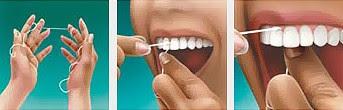 826ff793f Como usar o fio dental ~ Dentaris Odontologia