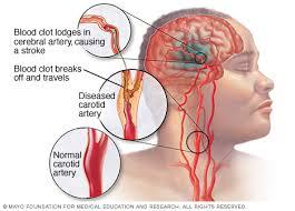 penyakit stroke badan mati sebelah, apa obatnya?, apa penyebab sakit stroke ringan?, Cara Alami Untuk Mengobati Penyakit Stroke Ringan