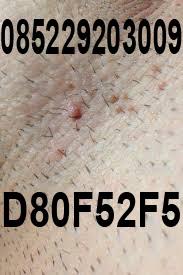obat kutil kelamin tanpa operasi herbal aman ampuh manjur mujarab terbukti terpercaya menghilangkan kutil tanpa operasi penghapus penghilang terbaik