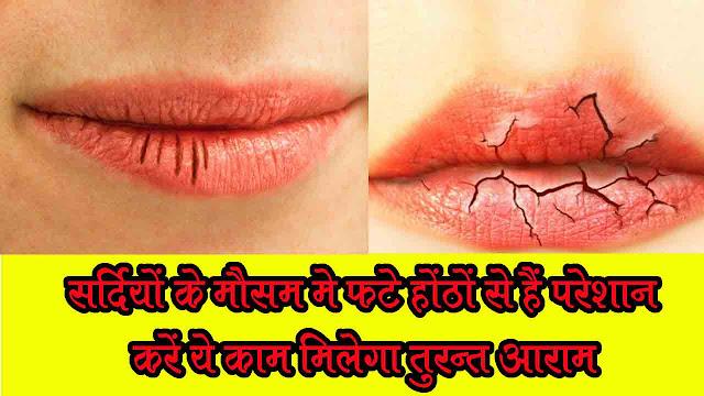 महिलाओं की होठों के सूखने की समस्या