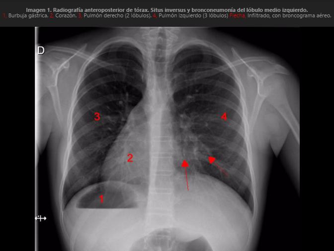 Situs Inversus: Anatomía y Radiología