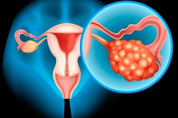 Saiba como tratar e detectar câncer de ovário o quanto mais cedo