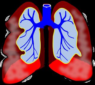 asthma ke gharelu upay, asthma ke ramban upay